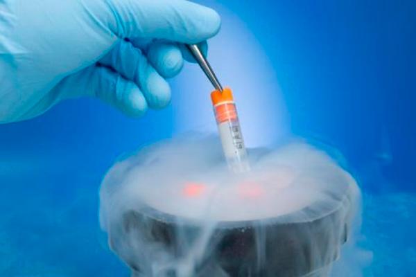 Хранение спермы